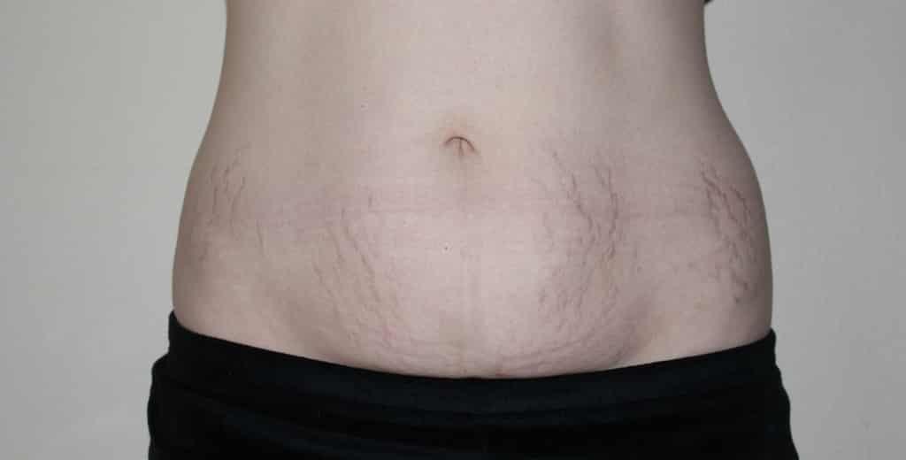 فقدان الوزن بعد الولادة مباشرة